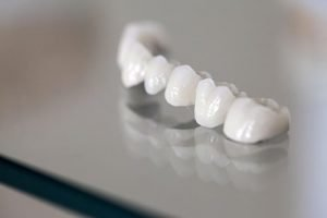 Dental Crowns and Bridges | Dentist Castlemaine