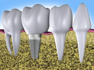 Dental Implants | Dentist Castlemaine