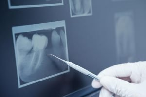 Dental Radiographs (X-rays) | Dentist Castlemaine