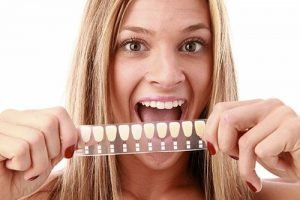 Dental Veneers | Dentist Castlemaine
