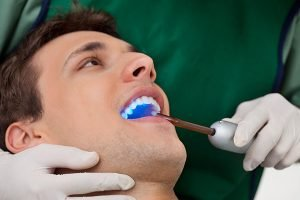 Fissure Sealants | Dentist Castlemaine