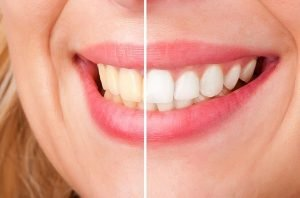 Teeth Whitening | Dentist Castlemaine