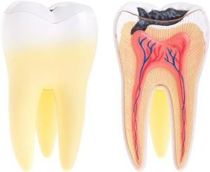 Tooth Decay Treatment | Dentist Castlemaine