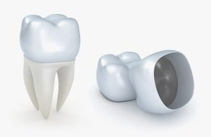 Castlemaine Smiles Dentist | Do Permanent Crowns Last Forever | Dentist Castlemain