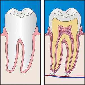 Castlemaine Smiles Dentist | Root Canal Treatment Dentist Castlemaine