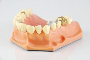 Lost Fillings Crown Or Inlay Onlay | Dentist Castlemaine